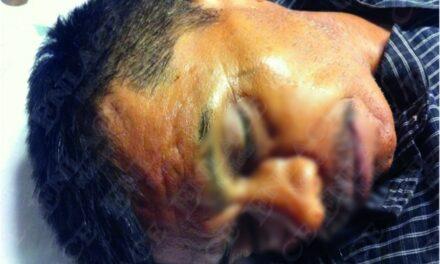Hombre muere de forma misteriosa en Acatlán