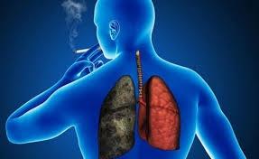 Tabaquismo principal causa de cáncer de pulmón