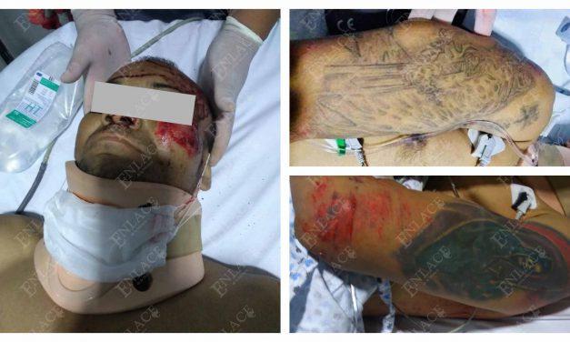 Muere hombre atropellado en Tepexco; está en calidad de desconocido